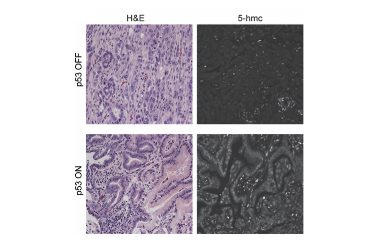 p53 restoration restores alpha-ketoglutarate dependent features of pre-malignant differentiation in mouse pancreatic cancer in vivo.