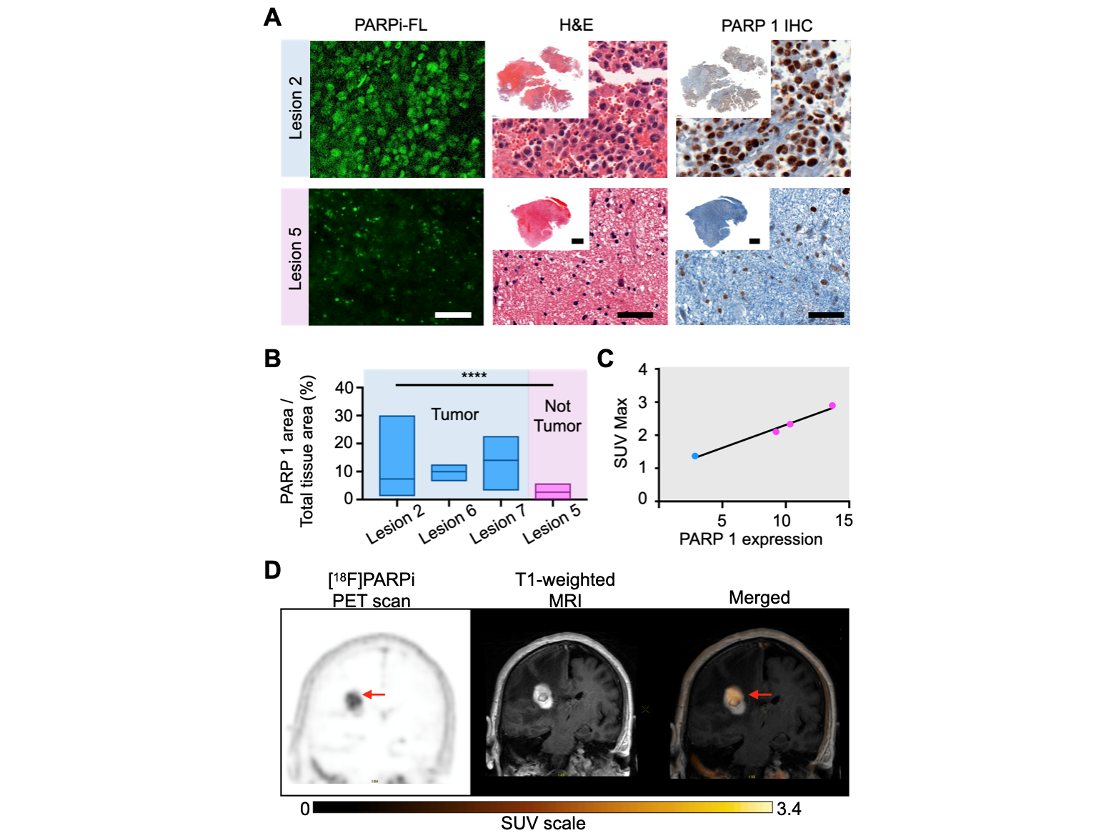 First-in-human imaging of [18F]PARPi