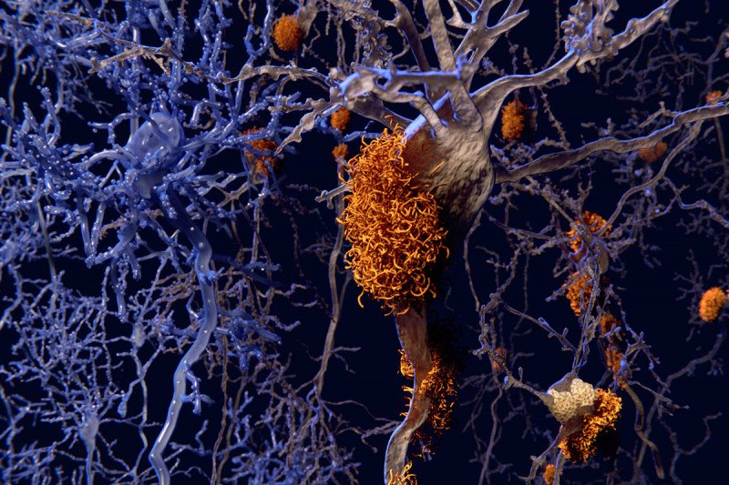 An illustration of a beta-amyloid plaque among the neurons in a brain.