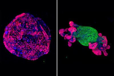 Organoid cell structures fluorescing in blue, green, and purple.