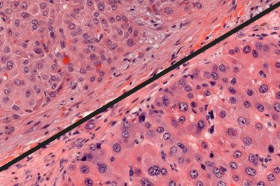 A microscopic view of genetically engineered mouse tumor and a human FL-HCC tumor
