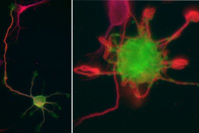Pictured: Neurons