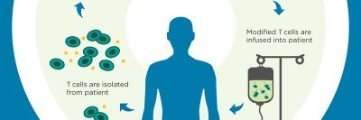 CAR T cell therapy