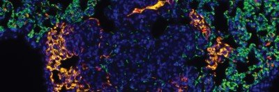 Metastatic tumor in the lung, with different colors used to represent the cell nuclei, the blood vessels, and the P-selectin protein.