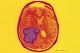 Enhanced MRI of a glioblastoma