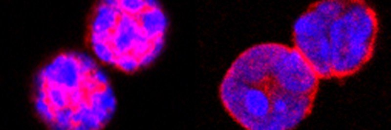 photo of Foxo1 protein stained in regulatory T cells
