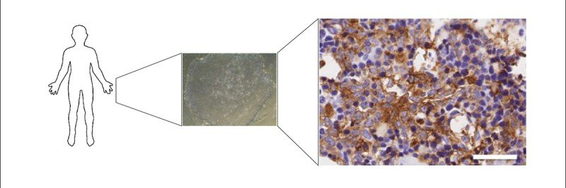 Histology images of stem cells and AML cells